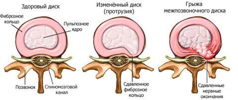 Ендоскопічна мікродискектомія (операція видалення грижі диска)
