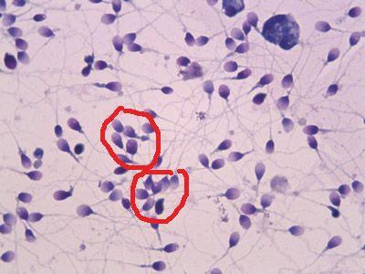Нормозооспермія з агглютинацией і / або агрегацією