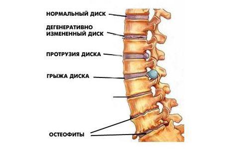Доктора бубновського і його гімнастика проти остеохондрозу