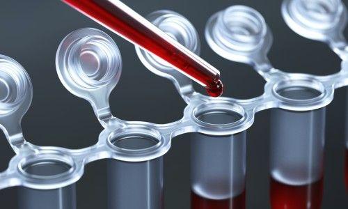Як і навіщо проводиться аналіз крові на алергени у дітей?