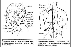 Масаж при остеохондрозі шийного відділу