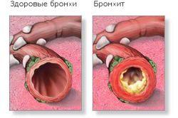 Особливості лікування бронхіту у дітей в домашніх умовах