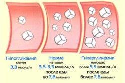 Норма і відхилення цукру в крові