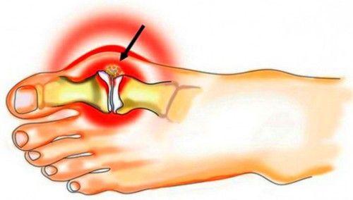 Ознаки та симптоми подагри у чоловіків