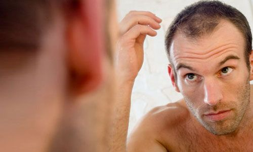 Рання лисина у чоловіків: причини і лікування