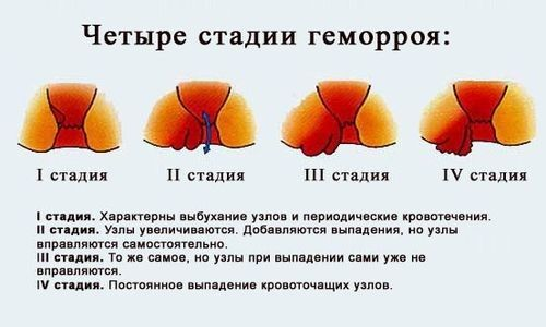 Опис чотирьох стадій геморою