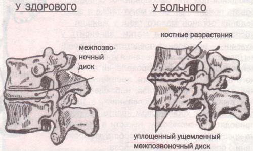 Специфіка дегенеративно дистрофічних змін поперекового відділу хребта