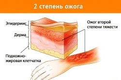 Зміни покривних тканин при опіку 2 ступеня