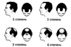 Випадання волосся: причини облисіння чоловіків і жінок