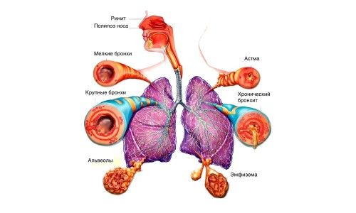Виконання дихальної гімнастики при бронхіальній астмі